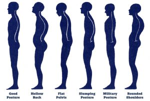How_to_fix_posture-picture